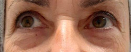 ISADE - Biorivitalizzazione e Ultrasuoni focalizzati